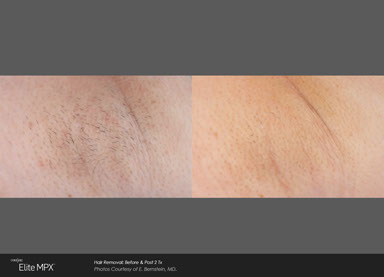 Hair Removal Madison Skin Specialists
